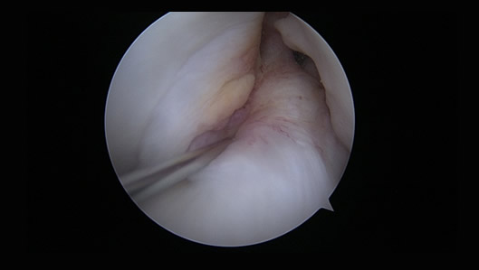 Arthroscopic view of a torn ACL