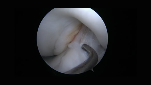 Arthroscopic view of same case after ACL reconstruction