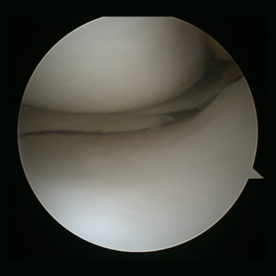 Arthroscopic view of meniscus with a tear